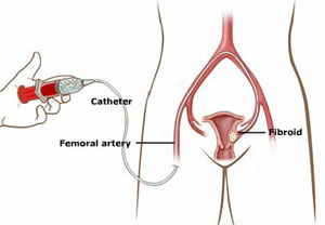Riverside Healthcare - Uterine Fibroid Embolization